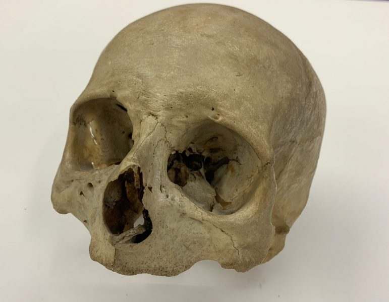 Darafshi, Cook uncover history of mysterious  human skull found in Clark Hall basement